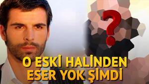 Mehmet Akif Alakurt şaşırttı... O eski halinden eser yok şimdi