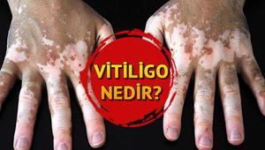 Vitiligo nedir Vitiligo belirtileri ve tedavisi