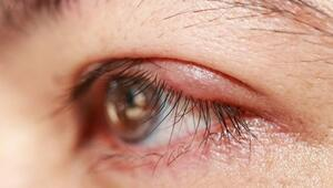 Blefarit (göz kapağı iltihabı) nedir, neden olur