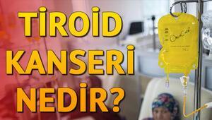 Tiroid kanseri nedir Tiroid kanseri tedavisi