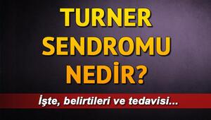 Turner sendromu nedir Turner sendromu tedavisi