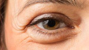 Nefrotik sendrom nedir Göz kapağı şişmesi neden olur