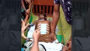 Karın ağrısıyla gittiği hastanede tüm iç organları çalındı