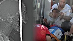 İşte küçük Fıratın son durumu 7 doktor 5 saat ameliyat etti…