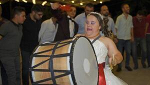 Down sendromlu Ebrunun düğün hayali gerçek oldu