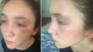 Antrenör,14 yaşındaki milli karateciyi yumrukla dövdü iddiası
