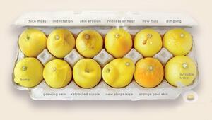 İngilterede meme kanserine limonlu teşhis