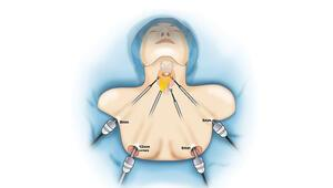 Memeden tiroit kanseri ameliyatı