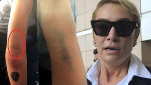 Son dakika... Şarkıcı Sıla: Ahmet Kural beni yerlerde sürükledi, kafamı duvarlara vurdu