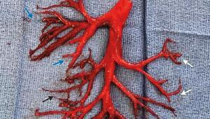 36 yaşındaki hasta ağaç dalı şeklinde 15cmlik kan pıhtısı tükürdü