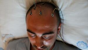 Epilepsi nedir Epilepsi hastalığı nasıl anlaşılır