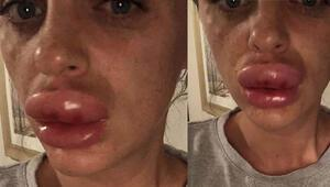 Arkadaş kurbanı: Neredeyse dudaklarından oluyordu
