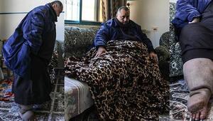 Fil hastalığına yakalanan Filistinli tedavi olacağı günü bekliyor