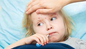 Kızamıkta alarm... Artıyor... Aşı olmayan 9 kişiyi daha hasta ediyor