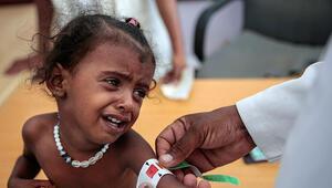 Yemende 3 yaşındaki kız çocukları para ve yemek karşılığında evlendiriliyor