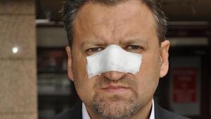 Öğretmenin burnunu kıran belediye başkan yardımcısına başka bir birimde memurluk görevi verildi