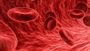 Kan uyuşmazlığı nedir Kan uyuşmazlığı bebeği nasıl etkiler