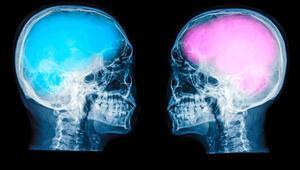 Erkek beyni kutucuklardan kadın beyni alanlardan oluşuyor