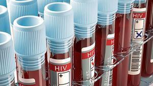 AIDS'e karşı umut ışığı