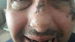 Sigara ve bisikletini vermeyince dişlerini döktüler