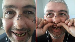 6 kişi ona dehşeti yaşattı Dişlerini döktüler...