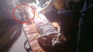Patenli kız çocuğunun ayağına korkuluk demirinin vidasına saplandı