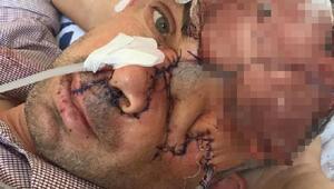 Dişini çektirdikten sonra gözünü ve yüzünün bir kısmını kaybetti iddiası