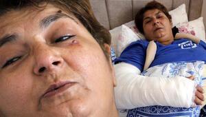 Kayınbiraderinin baltalı saldırısında yaralandı
