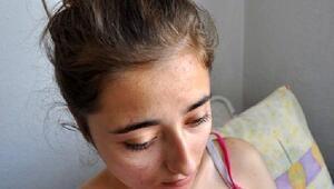Genç kız evine giderken arıların saldırısına uğradı