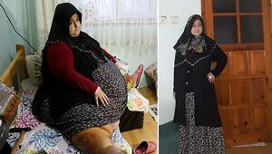 250 kiloydu... 1.5 yılda 155 kilo verdi
