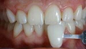 Yaprak porselenlerle dişlerinize doğal güzellik