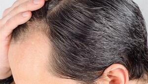 Saçlarını Kaybetmek İstemeyenler İçin Tedavi Yöntemleri