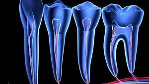 Çinli bilim insanlarından diş çürümesini ortadan kaldıracak buluş