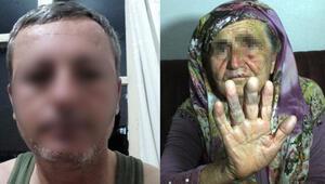 80 yaşındaki kadına tecavüz etmeye çalışmıştı O zanlı tutuklandı…