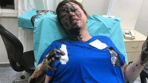 Dövüp üzerine siyah sıvı dökmüşlerdi Savcı itiraz etti, tutuklandı