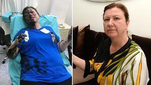 Üzerine siyah sıvı dökülen iş kadını: Tutuklamayla adalet yerini buldu
