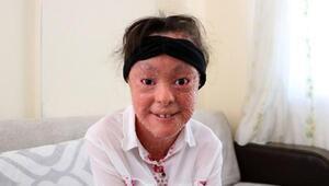 Balık pulu hastası mucize bebek yardım bekliyor