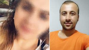 İzmirdeki ölümde akılalmaz şüphe Aile genç kızdan şikayetçi oldu