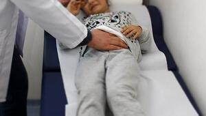 İrritabl Bağırsak Sendromu nedir İBS belirtileri ve tedavisi nelerdir