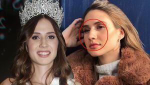 2019 Türkiye Güzeli Simay Rasimoğlu: Estetik yaptırmam burnum kemerli kalacak