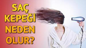 Saç kepeği nasıl geçer İşte kepek oluşumunu engellemek için yapılması gerekenler