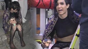 Köpeğinin yanarak öldüğünü duyunca sinir krizi geçirdi