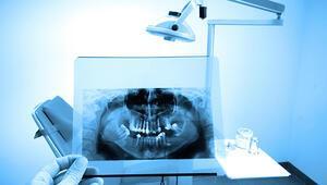 Diş Röntgeninde Radyasyon Miktarı Ne Kadar