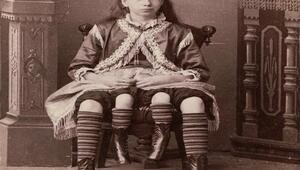 Dört bacaklı kadın Myrtle Corbin kimdir