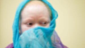 Zambiya'da albinos çocuğun elini kestiler