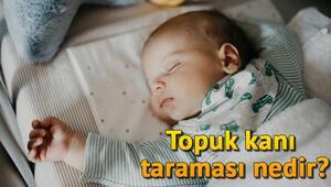 Yenidoğan topuk kanı taraması nedir Bebeğimden Neden Topuk Kanı Örneği Alınıyor
