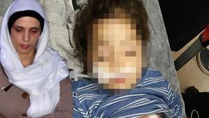Üvey anne dehşeti Döverek komaya sokmuştu, o çocuk yuvaya yerleştirildi