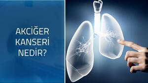 Akciğer kanserinin belirtileri nelerdir Nasıl bir hastalıktır
