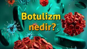 Botulizm (Botulismus) nedir, belirtileri nelerdir