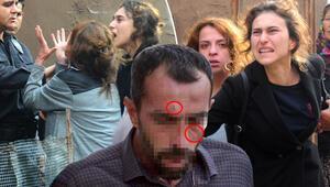 Adanada evlat vahşeti Yüzündeki izler kan dondurdu...